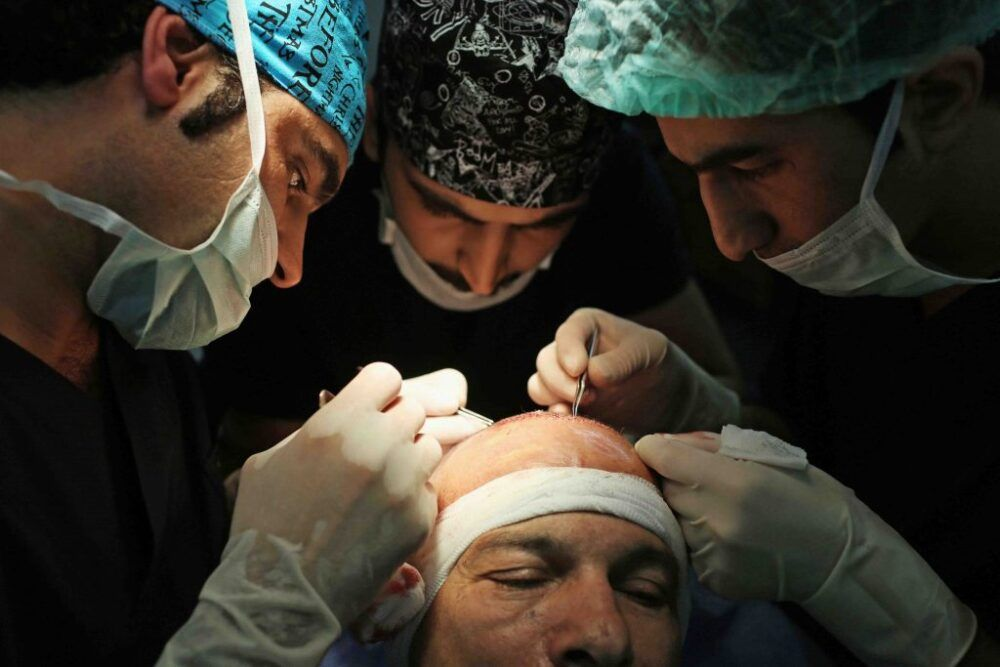 Mejores Clínicas para el Trasplante Capilar en Turquía